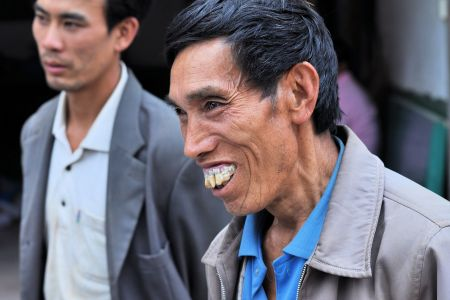 Faces of China: Smiling Chinese man with interesting dental work
